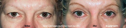 eyelid_surgery1