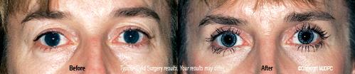 eyelid_surgery2