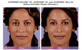 juvederm-voluma-before-and-after-photo
