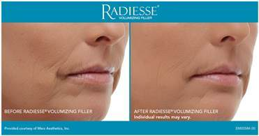 radiesse-before-and-after-photo
