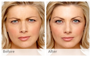 botox-before-and-after-2