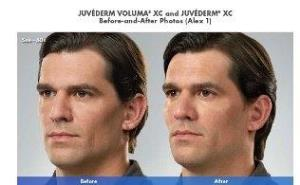 juvederm-before-and-after-photo-2
