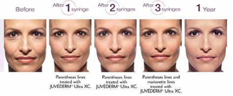 juvederm-before-and-after-photo
